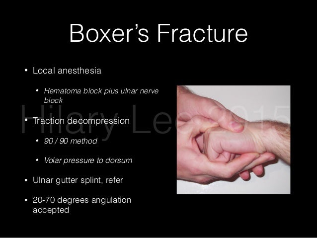 5th Metacarpal Fracture Splint
